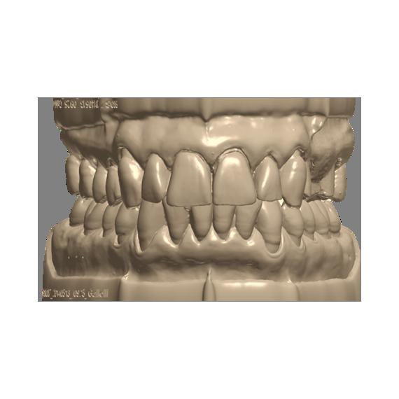 Zirconio Plus multistrato da modello(consigliato per monolitiche)
