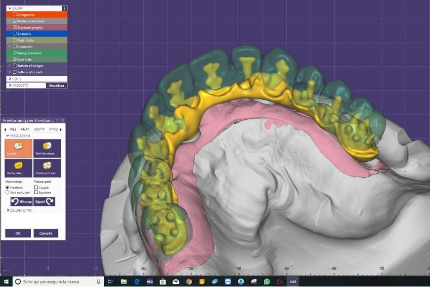 Exocad: la soluzione completa per l'odontoiatria digitale